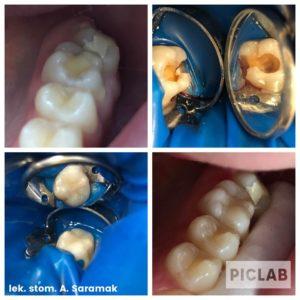 Odbudowa estetyczna zębów Luxdent Kielce